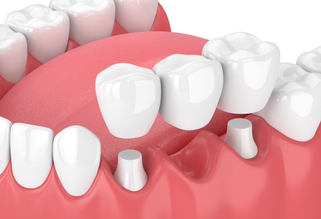 Closeup of a dental bridge to replace a missing tooth