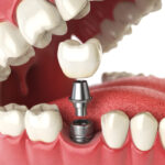 Closeup of a dental implant as a permanent tooth replacement solution