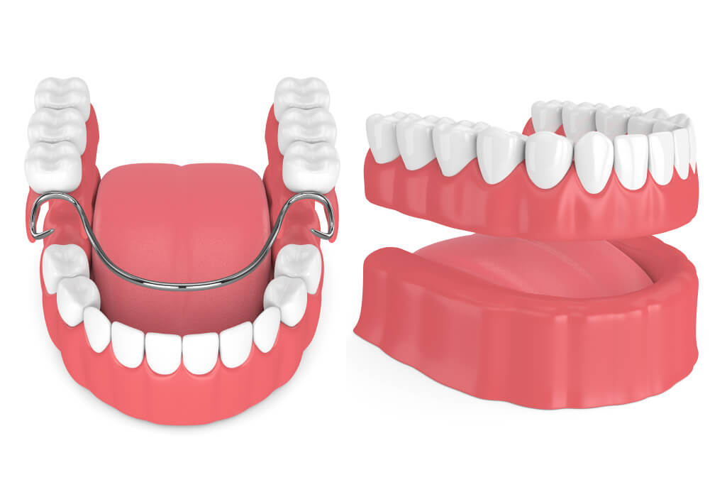 Closeup of partial dentures vs full dentures to replace teeth in San Antonio, TX