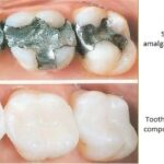 comparison between amalgam and composite fillings for teeth cavities