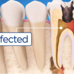 illustration of an infected tooth needing root canal therapy