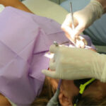 patient undergoing a tooth extraction at the dentist